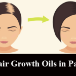 5 Best Hair Growth Oils in Pakistan