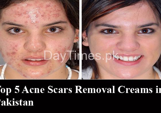 Top 5 Acne Scar Removal Creams in Pakistan