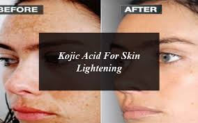 Kojic Acid Is An Ideal Tonic For Skin Lightening: Benefits And Side Effects