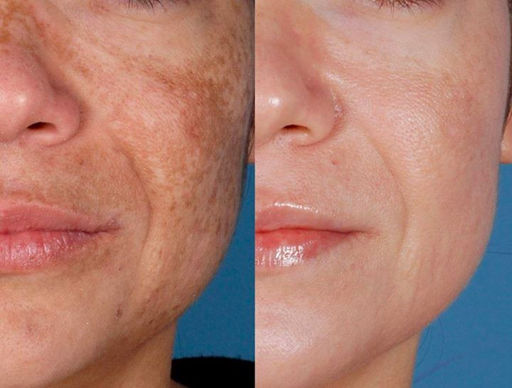 Glutathione Skin Whitening Injections Treatment Price In Pakistan