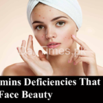 9 Vitamins Deficiencies That Ruin Your Face Beauty