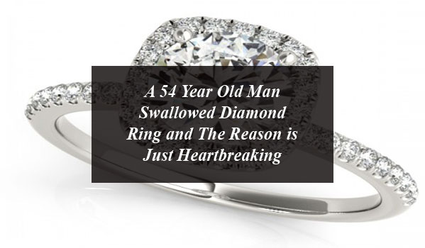 A 54 Year Old Man Swallowed Diamond Ring and The Reason is Just Heartbreaking