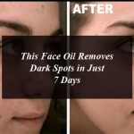 This Face Oil Removes Dark Spots in Just 7 Days