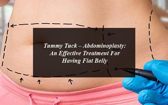 Tummy Tuck – Abdominoplasty: An Effective Treatment For Having Flat Belly