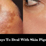 5 Best Ways To Deal With Skin Pigmentation